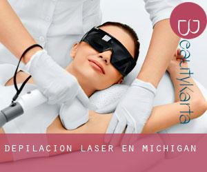 Depilación laser en Michigan